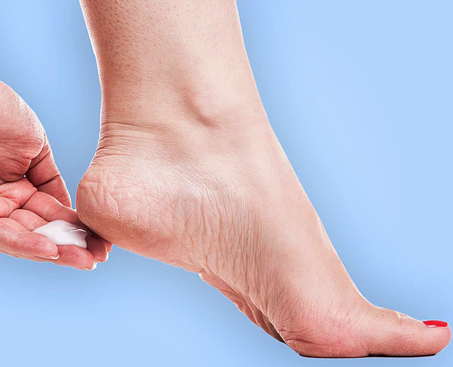 Have Cracked Heels? These 9 Home Remedies Will Solve Your Problem!