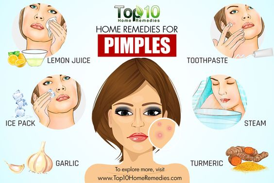 10 Home Remedies To Get Rid of Pimples