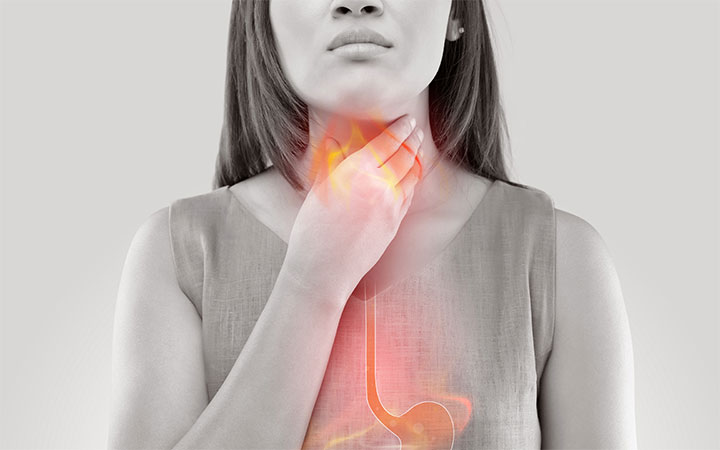 The Best and Worst Foods for Acid Reflux