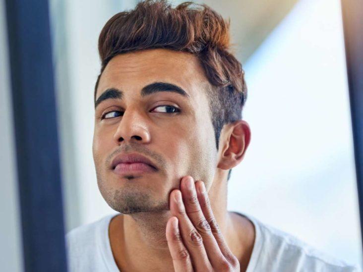 Does masturbation cause acne?